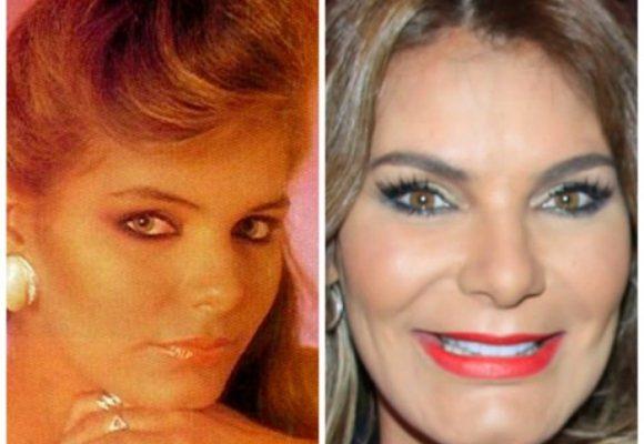 Maria Mónica Urbina y otras famosas deformadas por el botox