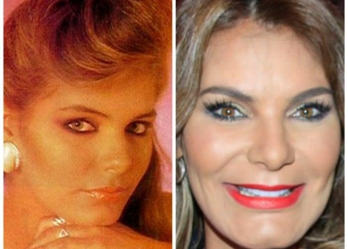 Maria Mónica Urbina y otras famosas deformadas por el botox - Las2orillas