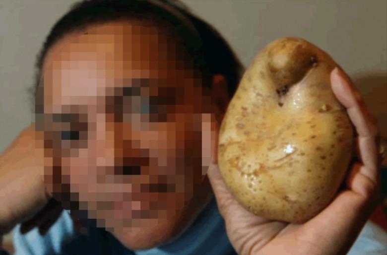 A mujer del Tolima le creció una papa en la vagina