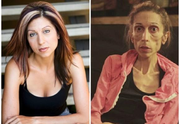 S.O.S de mujer devastada por la anorexia