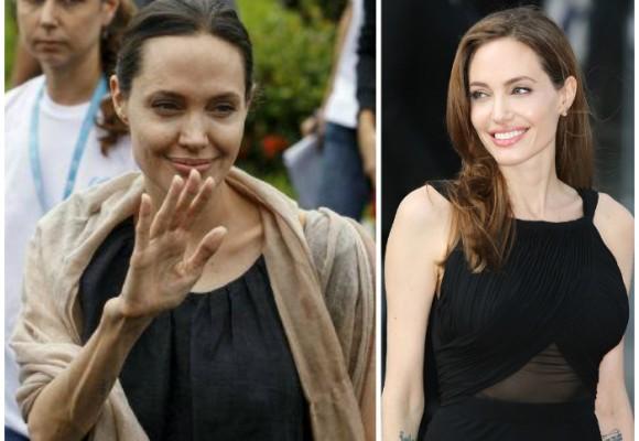 Angelina Jolie: acorralada por la anorexia