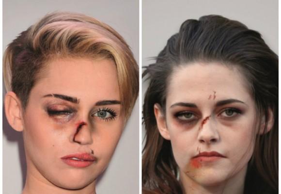 Los rostros de las famosas maltratadas