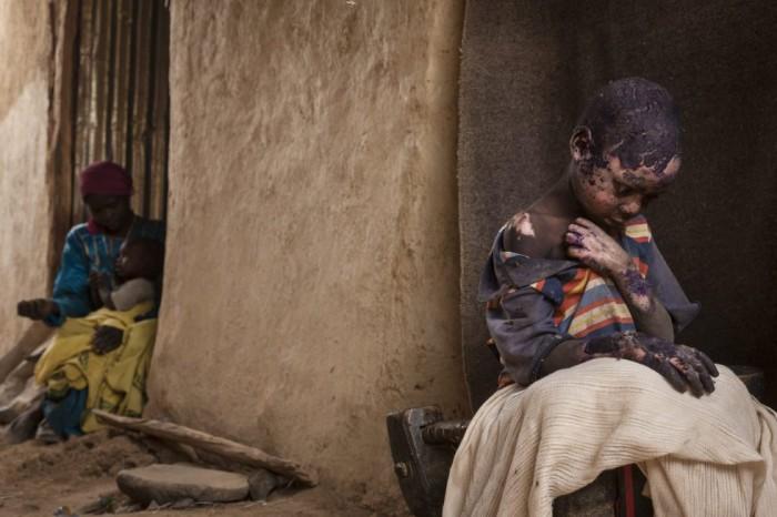 Fotografía ganadora del segundo premio individual en la categoría de problemas contemporáneos, tomada por la fotógrafa Adriane Ohanesian. La imagen muestra a Adam Abdel de 7 años gravemente quemado después de que una bomba lanzada por el gobierno sudanés cayera junto a la casa de su familia en Burgu (Sudán) el 27 de febrero de 2015. ADRIANE OHANESIAN/WORLD PRESS PH (EFE)