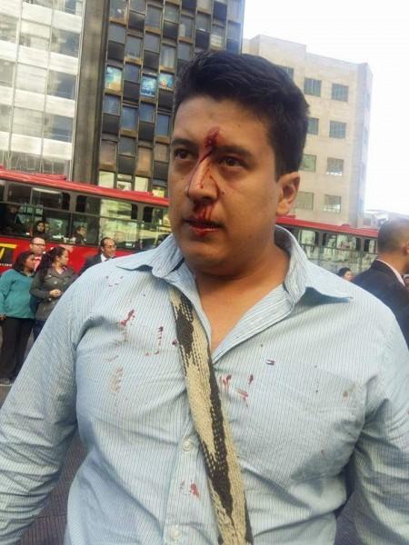 La intevención de los que se dicen llamar 'policías' terminó con resultados como estos. Foto:  Lina Hernández
