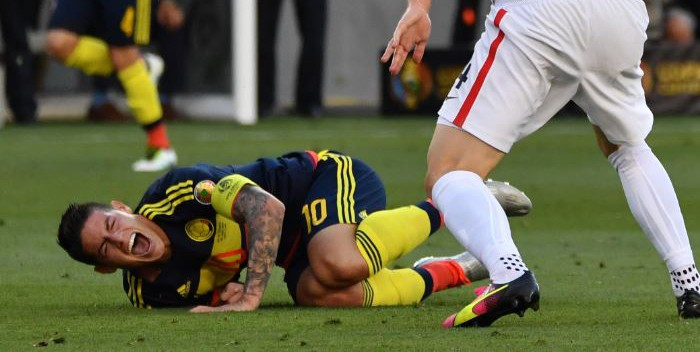 james-colombia-lesion