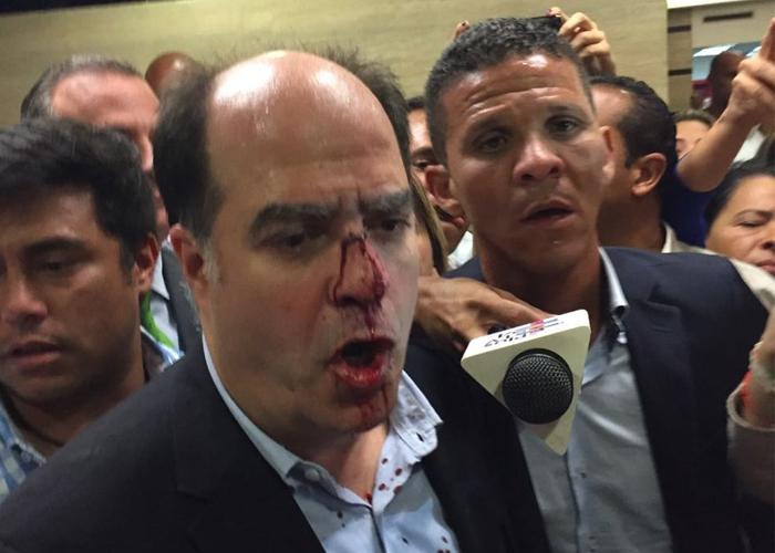 Así fue la golpiza a líder opositor de Venezuela