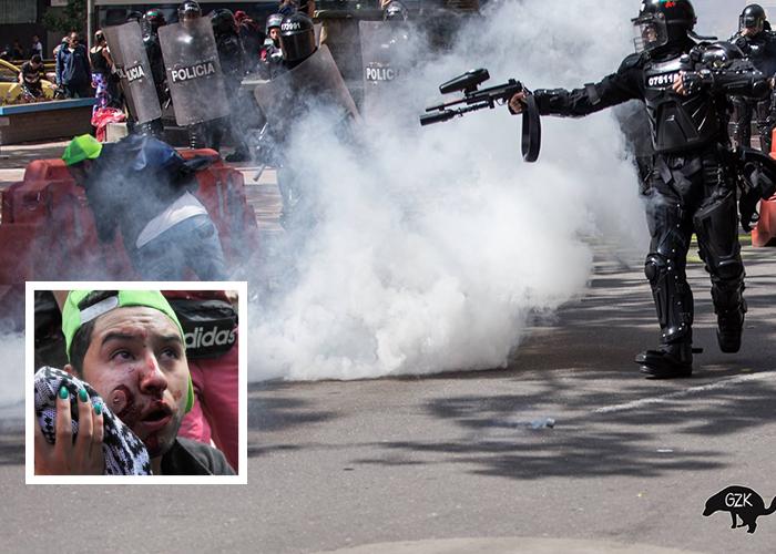 """""""Un agente del ESMAD me destrozó la cara de un disparo"""""""