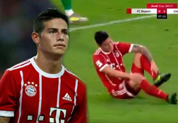 La mala suerte persigue a James también en el Bayern: lesión y separación