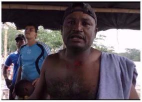 """VIDEO: """"Cómo se les ocurre atacar a un campesino así, con plomo"""""""