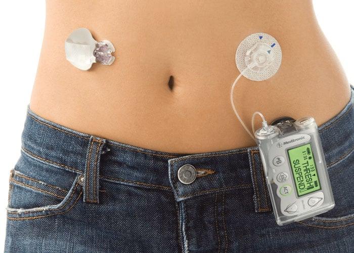 Bomba de insulina, cubierta en el POS
