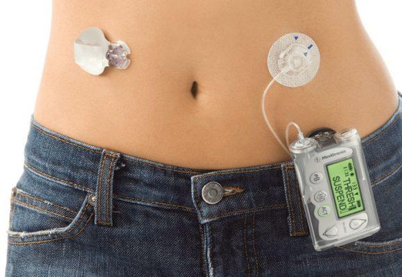 Bomba de insulina, otra opción para la diabetes
