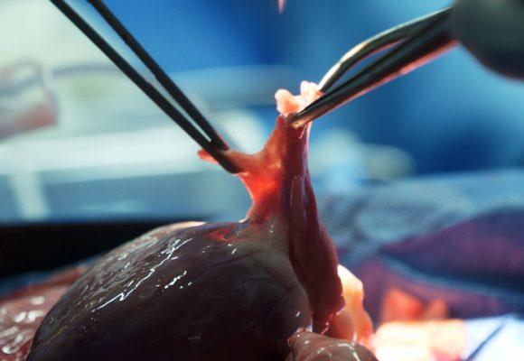 Colombianos desarrollan técnica que evita rechazo de órganos trasplantados