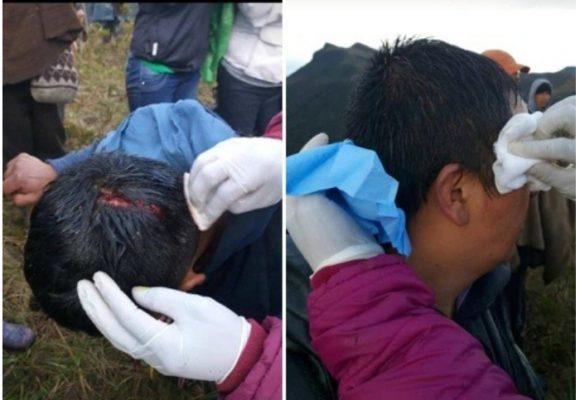 Autoridad indígena de Ambaló reporta más de 100 heridos a machete y garrote