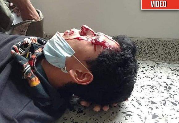 El Esmad vuelve y juega: dejó al borde de la muerte a estudiante