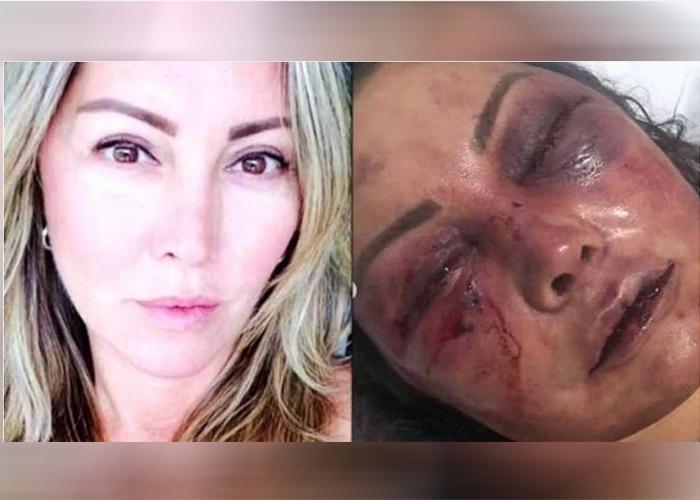 Chateaban por redes sociales y en la primera cita, la desfiguró a golpes y mordeduras