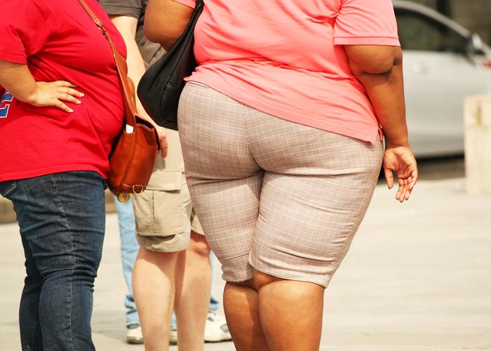 Obesidad, la silenciosa enfermedad que están padeciendo los colombianos