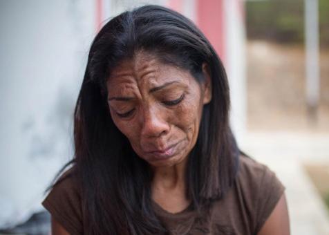 """""""A mi hijo lo quemaron vivo por ser chavista"""""""