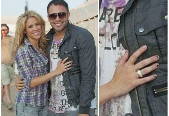 Shakira ¿con problemas de higiene?