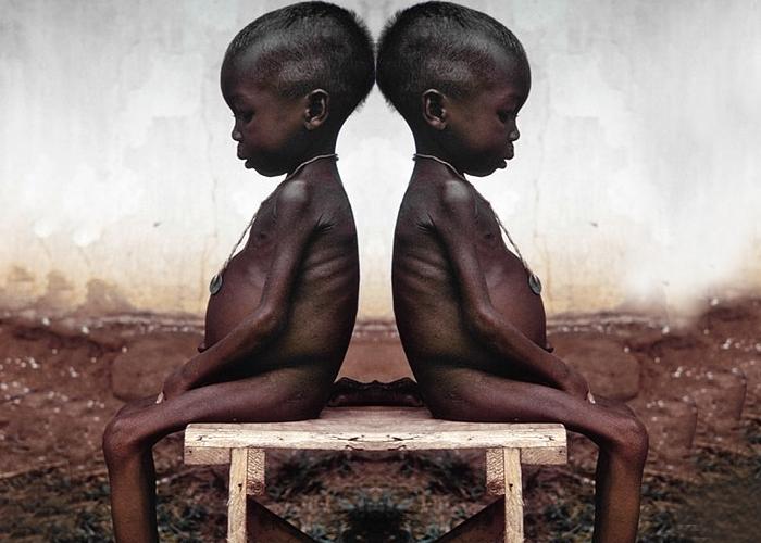 La desnutrición no solo afecta a La Guajira