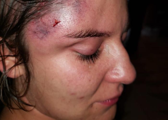 Golpiza del ESMAD a una manifestante en Medellín