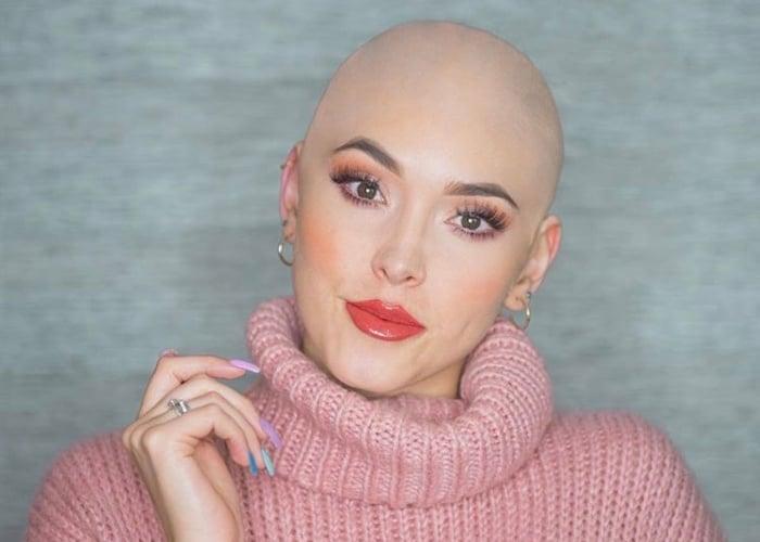 ¿Homenaje o irrespeto a pacientes con cáncer? El polémico vídeo de Kika Nieto calva