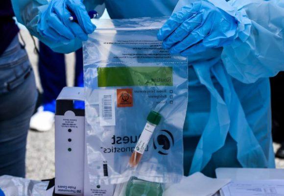 ¿Quién le va a creer al gobierno la cifra de infectados con la máquina para el diagnóstico dañada?