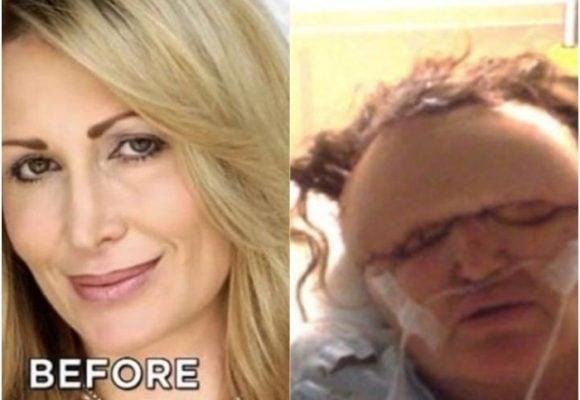 Falso cirujano deforma rostro a modelo tras inyectarle relleno facial
