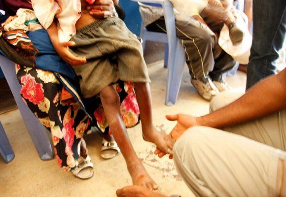 El círculo vicioso de la desnutrición infantil en La Guajira