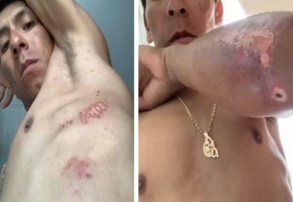 VIDEO | El inhumano sufrimiento de Nairo en el Tour