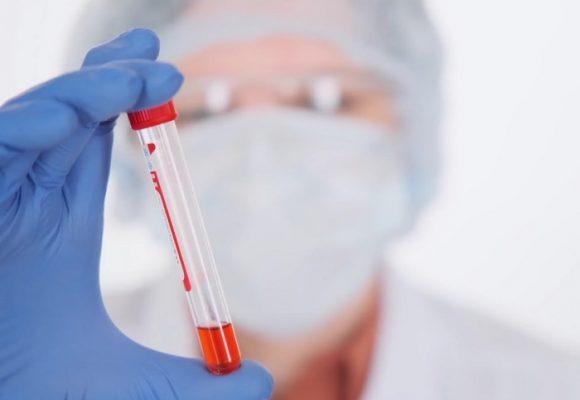 Falta de procesamiento de 18.548 pruebas de COVID-19 habría generado grandes pérdidas